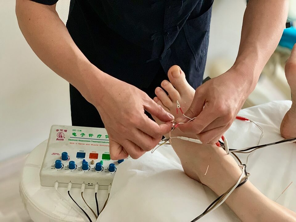 Chinese acupuncture with electrical stimulation