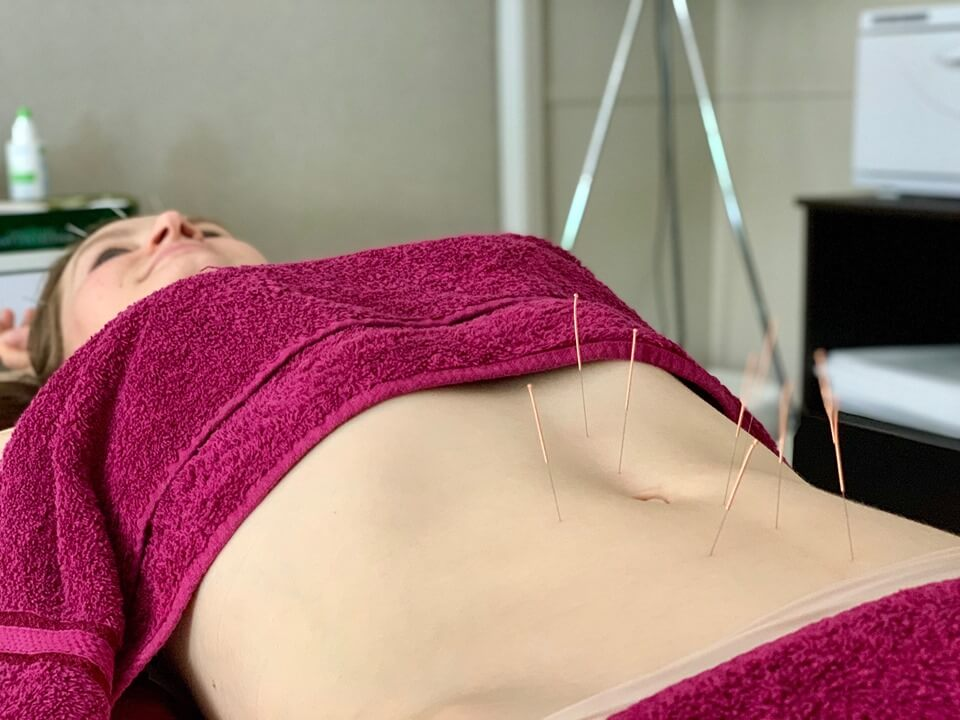 chinese-acupuncture-in-the-stomach